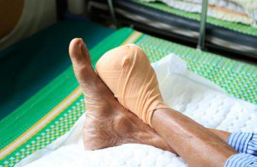 Cứ 30s lại có một người bị cắt cụt chân vì hậu quả biến chứng tiểu đường